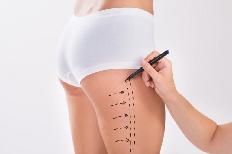 Surgeon preparing woman for thigh lift surgery