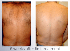 Laser Hair Removal Bothell Wa Medspa Dr Robert Dragotti